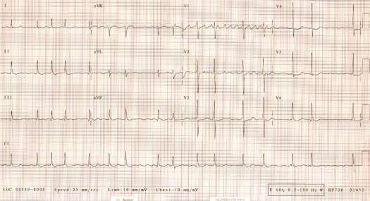 woman with rheumatic heart disease, permanent atrial fibrillation,