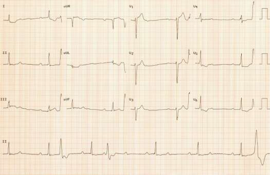 2nd ECG of September
