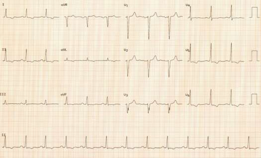 1st ECG of September