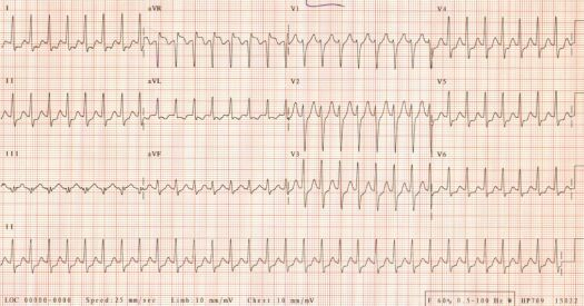 1st ECG of October