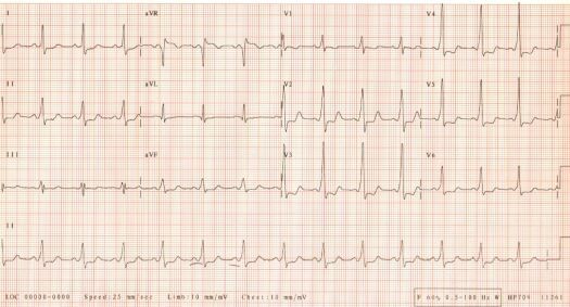 2nd ECG of October